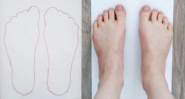 женские стопы вид сверху широкие поперечное плоскостопие короткие пальцы