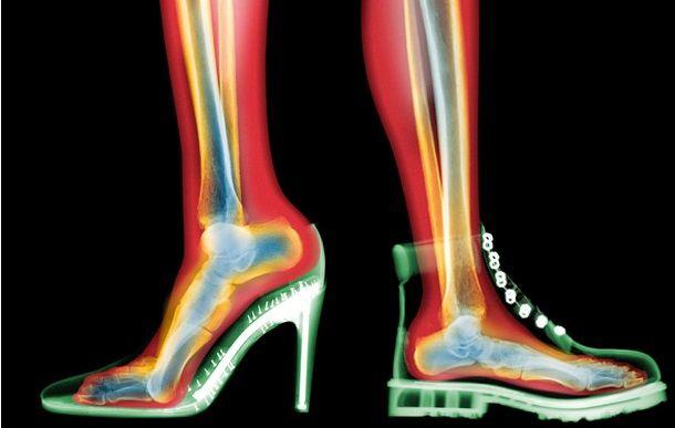 Болят икры после смены обуви, что делать?